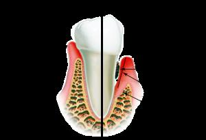 Лечение корень зума
