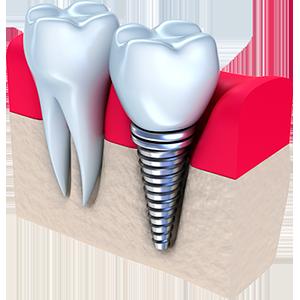Лечение корня зуба
