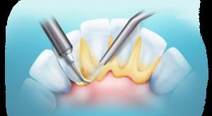 Реставрация зубов в Киеве