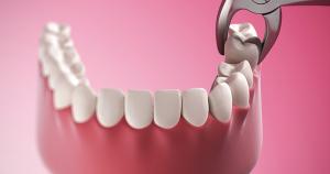 Удаление зуба Киев
